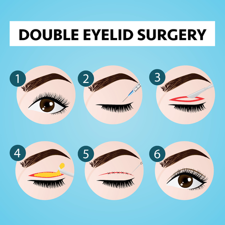 double eyelid surgery step vector illustration