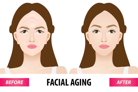 Facial aging before and after vector illustration. Çizim