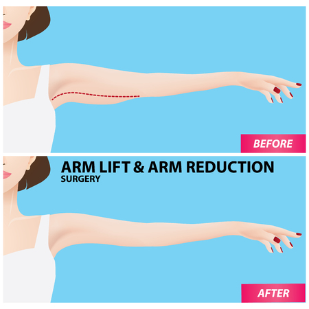 Arm lift and reduction surgery vector illustration