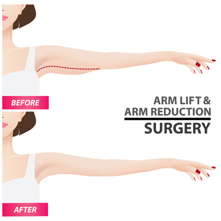 Arm lift and reduction surgery vector illustration Фото со стока - 100606317