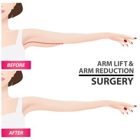 Arm lift and reduction surgery vector illustration Banco de Imagens - 100606317