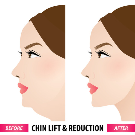 Double chin lift and reduction before and after vector illustration