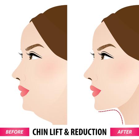 Elevación y reducción de la papada antes y después de la ilustración vectorial
