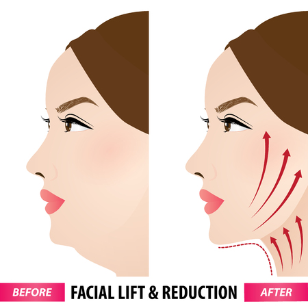 Facial lift and reduction before and after vector illustration