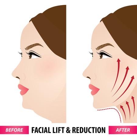 Facial Lift und Reduktion vor und nach der Vektorillustration