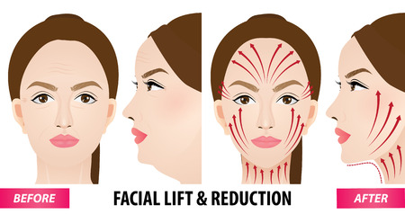 Facial lift and reduction before and after vector illustration Imagens - 100606319