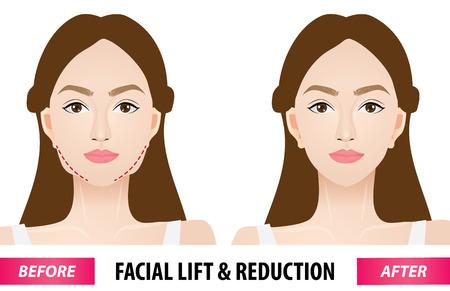 Lifting facial y reducción antes y después de la ilustración vectorial