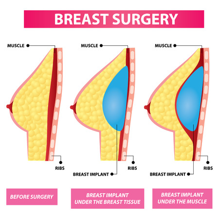 Plastic surgery of breast implant before and after vector illustration