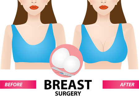 Breast surgery before and after vector illustration
