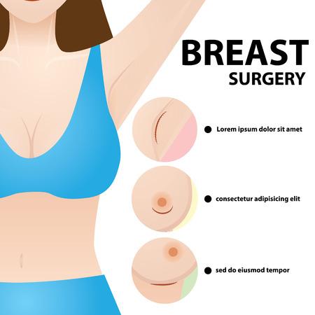 Illustrazione vettoriale di chirurgia del seno Vettoriali