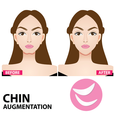 Chin augmentation before and after vector illustration Иллюстрация