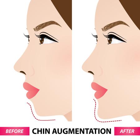 Aumento del mento prima e dopo l'illustrazione vettoriale Vettoriali