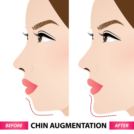 Chin augmentation before and after vector illustration Ilustracja