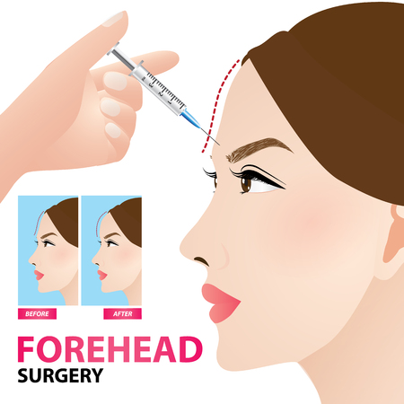 Forehead surgery before and after vector illustration