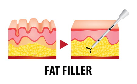 fat filler surgery vector illustration Illustration