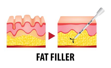 fat filler surgery vector illustration Illustration