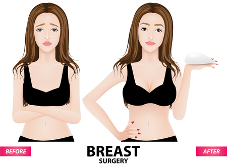 breast surgery before and after vector illustration Çizim