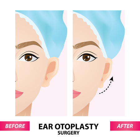Ear otoplasty surgery before and after vector illustration Stock Vector - 100741799