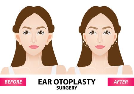 Ohr-Otoplastik-Operation vor und nach der Vektorillustration Vektorgrafik