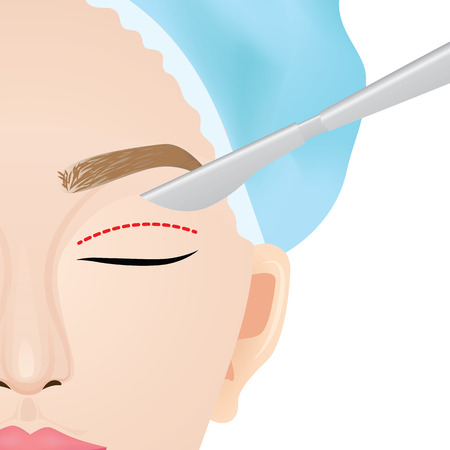Double eyelid surgery before and after vector illustration 矢量图像