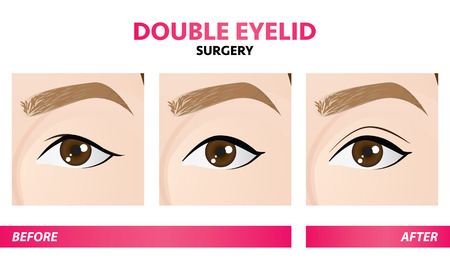 Double eyelid surgery before and after vector illustration Stock Illustratie