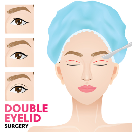 Double eyelid surgery before and after vector illustration Çizim