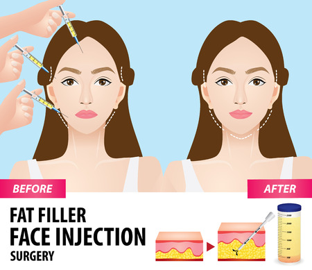 Fat graft before and after vector illustration