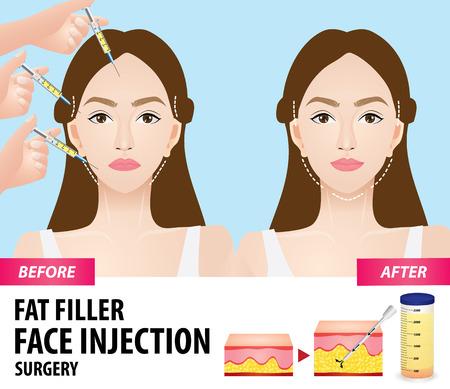 Fetttransplantation vor und nach der Vektorillustration Vektorgrafik