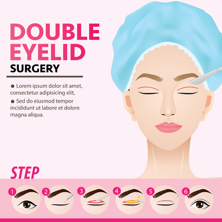 Double eyelid surgery steps vector illustration