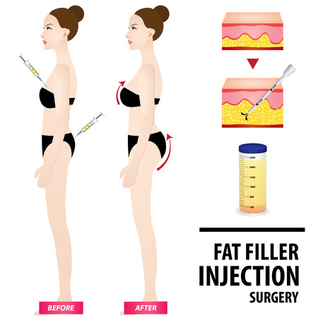 Fat graft before and after vector illustration.