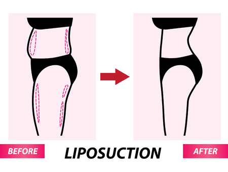 Liposuction , woman fat surgery before and after vector illustration