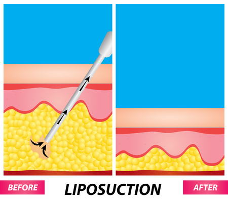 Liposuction , fat surgery diagram before and after vector illustration