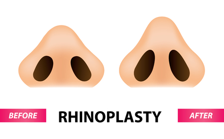 Rhinoplasty surgery vector