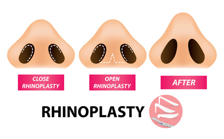 Rhinoplasty surgery vector. Stock Illustratie