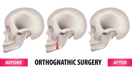 Orthognathic surgery vector illustration.