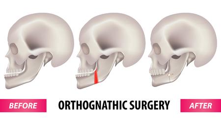 Vektorillustration der orthognathen Chirurgie. Vektorgrafik