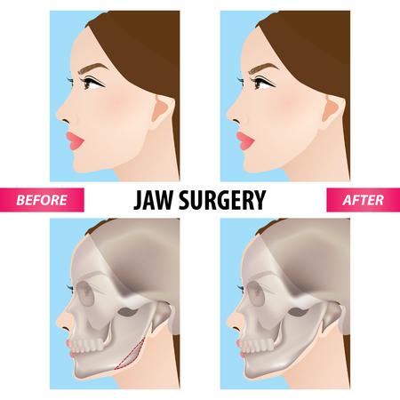 Jaw surgery vector illustration