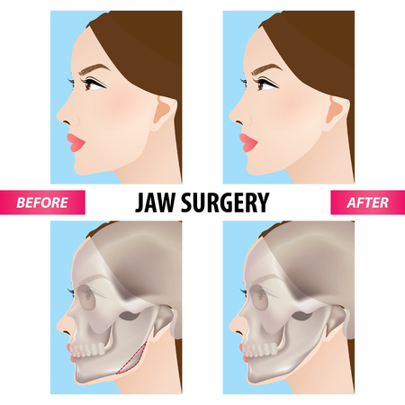 Jaw surgery vector illustration