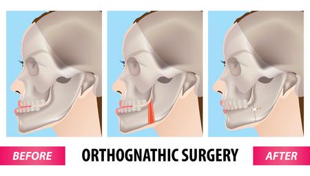 Ilustración de vector de cirugía ortognática