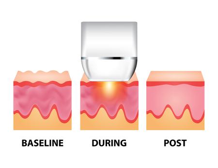 Laser per illustrazione vettoriale anti invecchiamento