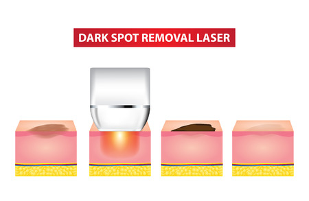 Dark spot laser steps vector illustration Illustration