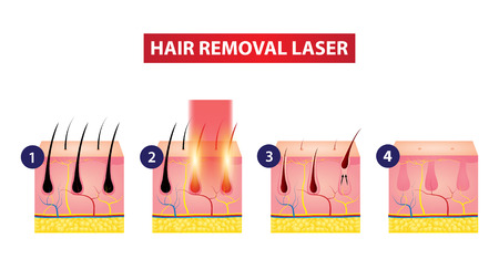 Hair removal laser icon step vector illustration