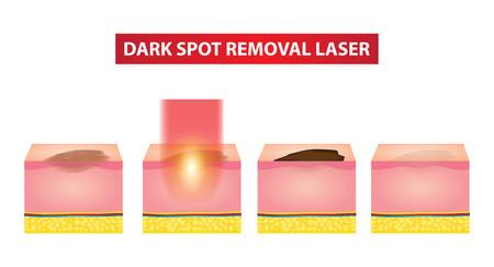 Dark spot laser steps vector illustration