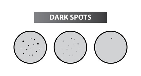 Spots skin to clear steps vector illustration