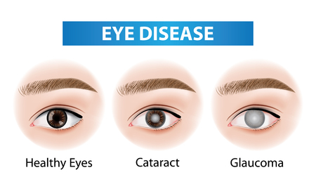 Eye diseases vector illustration Ilustrace