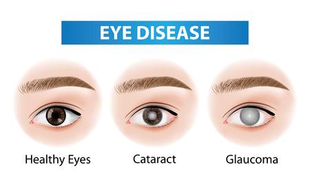 Illustration vectorielle de maladies oculaires