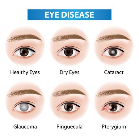 Eye diseases vector illustration  イラスト・ベクター素材