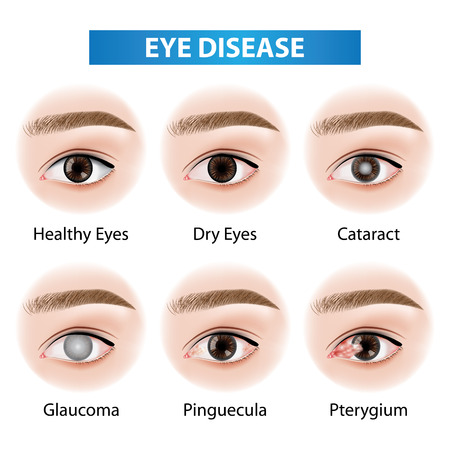 Eye diseases vector illustration Çizim