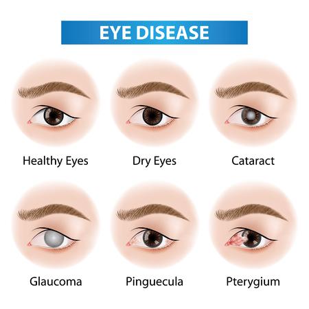 Eye diseases vector illustration Illustration