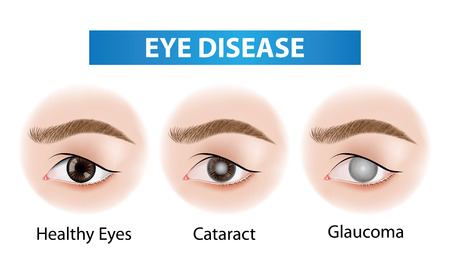 Eye diseases vector illustration 矢量图像